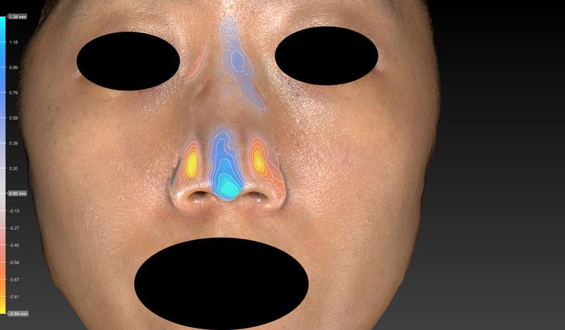 高低変化 鼻尖縮小(3D法)+軟骨移植
