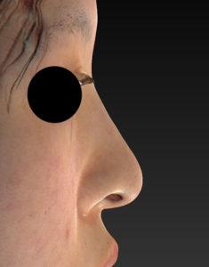 右側面1ヶ月後鼻尖縮小+軟骨移植+プロテーゼ-