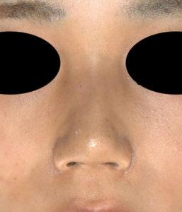正面 3ヶ月後 鼻翼縮小(内+外側法)