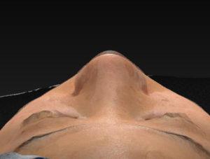 術前後変化上から 鼻尖縮小(3D法)+軟骨移植