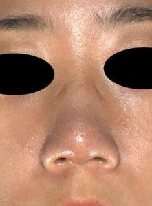 正面3ヶ月後 鼻尖縮小(3D法)+軟骨移植