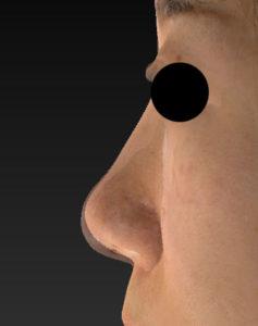 術前後変化 左側面 鼻尖縮小(3D法)+軟骨移植