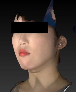 左斜め 3ヶ月後 小顔脂肪吸引(ホホ・あご下・ほうれい線上)