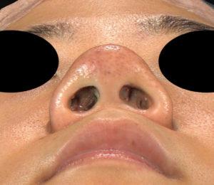 下から術前 鼻尖縮小(3D法)+軟骨移植