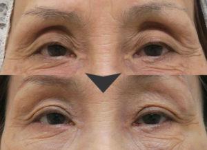 くぼみ目脂肪注入の症例写真