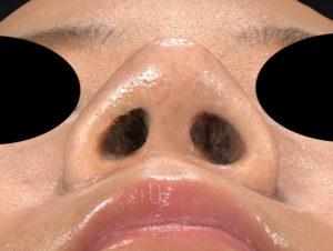 術後 下から -鼻尖縮小(3D法)+軟骨移植