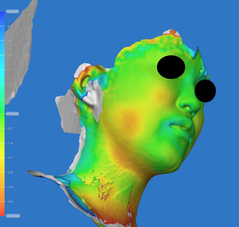 色変化 右斜め下 小顔脂肪吸引(ホホ・あご下・ほうれい線上)