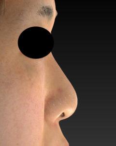 右側面 術前 -鼻尖縮小+軟骨移植+ストラット