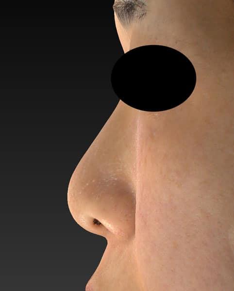 左側面 術前鼻尖縮小+軟骨移植+ストラット