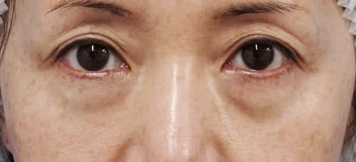 目の下の脂肪取り+コンデンス脂肪注入 1ヶ月後 手術直後、1週間後ものBefore写真