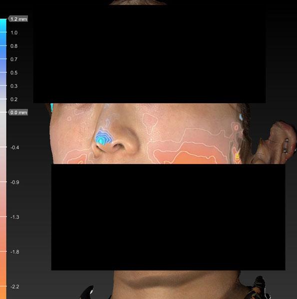 鼻先変化色 鼻尖縮小+軟骨移植+ストラット