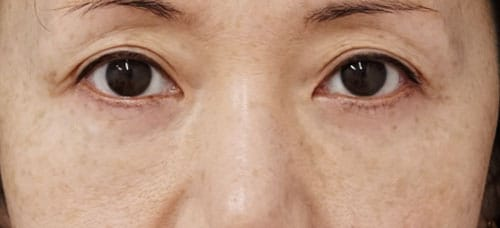 目の下の脂肪取り+コンデンス脂肪注入 1ヶ月後 手術直後、1週間後ものAfterの写真