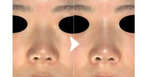 鼻ヒアルロン酸(クレヴィエルコントア) 1週間後