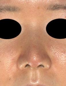 鼻尖縮小、軟骨移植 正面 1か月後