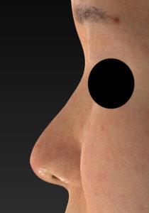 鼻尖縮小、軟骨移植 左側面 1か月後