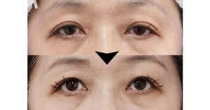 切らない眼瞼下垂 1週間後、1ヶ月後