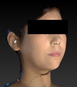 右斜め7か月語小顔脂肪吸引(ホホ・あご下)