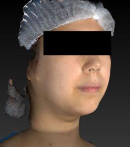 右斜め術前小顔脂肪吸引(ホホ・あご下)