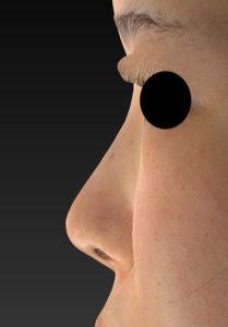 鼻ヒアルロン酸(クレヴィエルコントア) 左側面 処置前