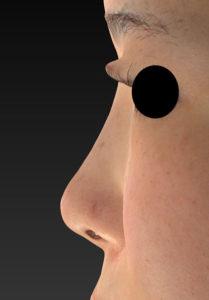 鼻ヒアルロン酸(クレヴィエルコントア) 左側面 1週間後
