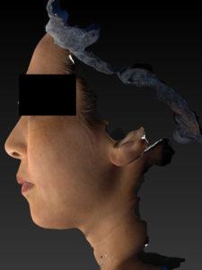 左側面-手術前 ミントリフトミニフレックス10本