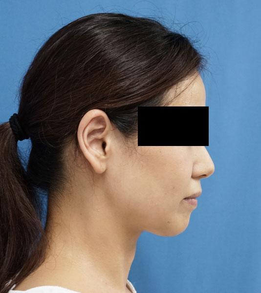 HIFU(ハイフ)全顔 3ヶ月後のAfterの写真