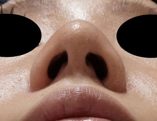 鼻尖形成、鼻尖部軟骨移植、flap法 5ヶ月後のAfterの写真