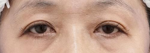 切らない眼瞼下垂 1週間後、1ヶ月後のBefore写真