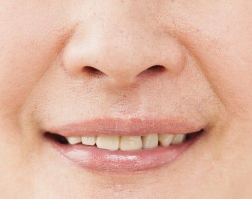 鼻の穴が目立つ