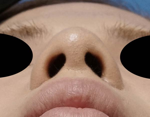 傷が見えない小鼻縮小、flap法 2ヶ月後のAfterの写真