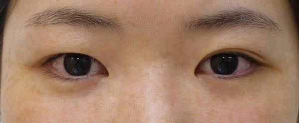 美容外科医だからわかること ① | 右目は二重になりにくい
