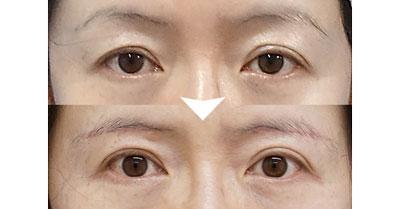 眉下切開 手術直後、1ヶ月後
