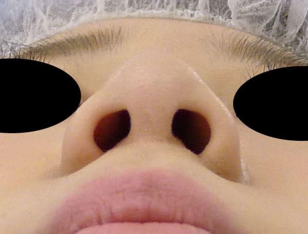 小鼻縮小(flap法) 1か月後のAfterの写真