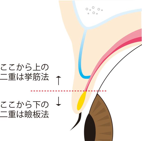 二重の幅によって瞼板法か挙筋法かが決まります。