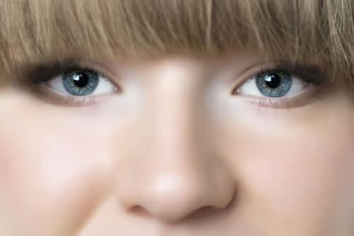 鼻尖縮小(団子鼻の整形)
