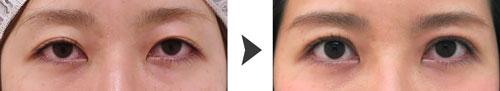 切らない眼瞼下垂プレミアム症例写真