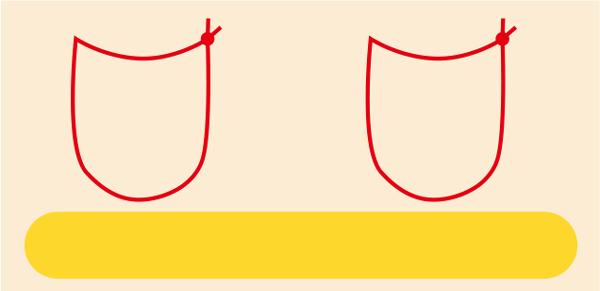 瞼板を貫かない2点止め(スキンアプローチ)