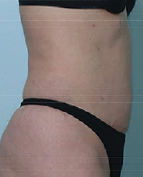 カベリン(腹部) 3ヶ月10回治療後のAfterの写真