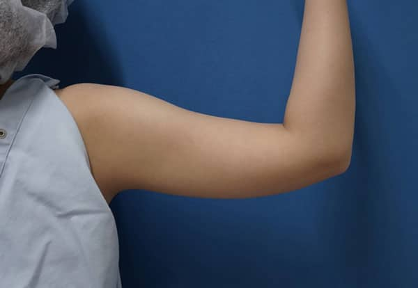 スタッフさんの二の腕(上腕)脂肪吸引 2か月後のBefore写真