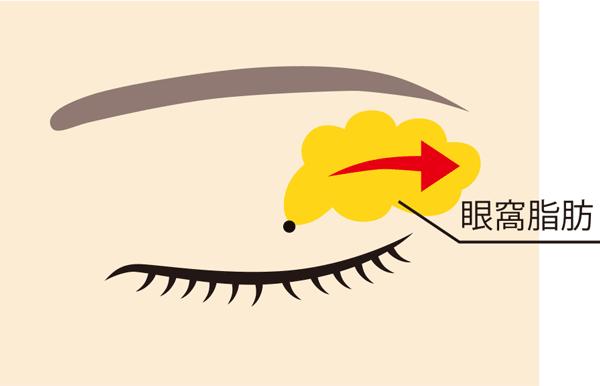 眼窩脂肪除去 まぶたの脂肪取り