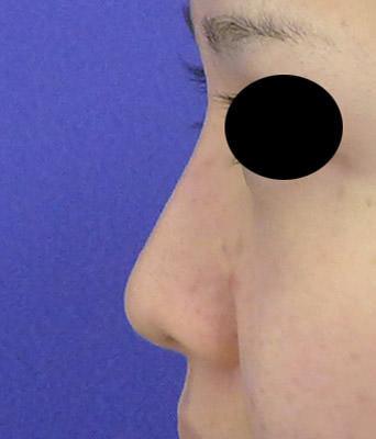 鼻プロテーゼ 3ヶ月後のAfterの写真
