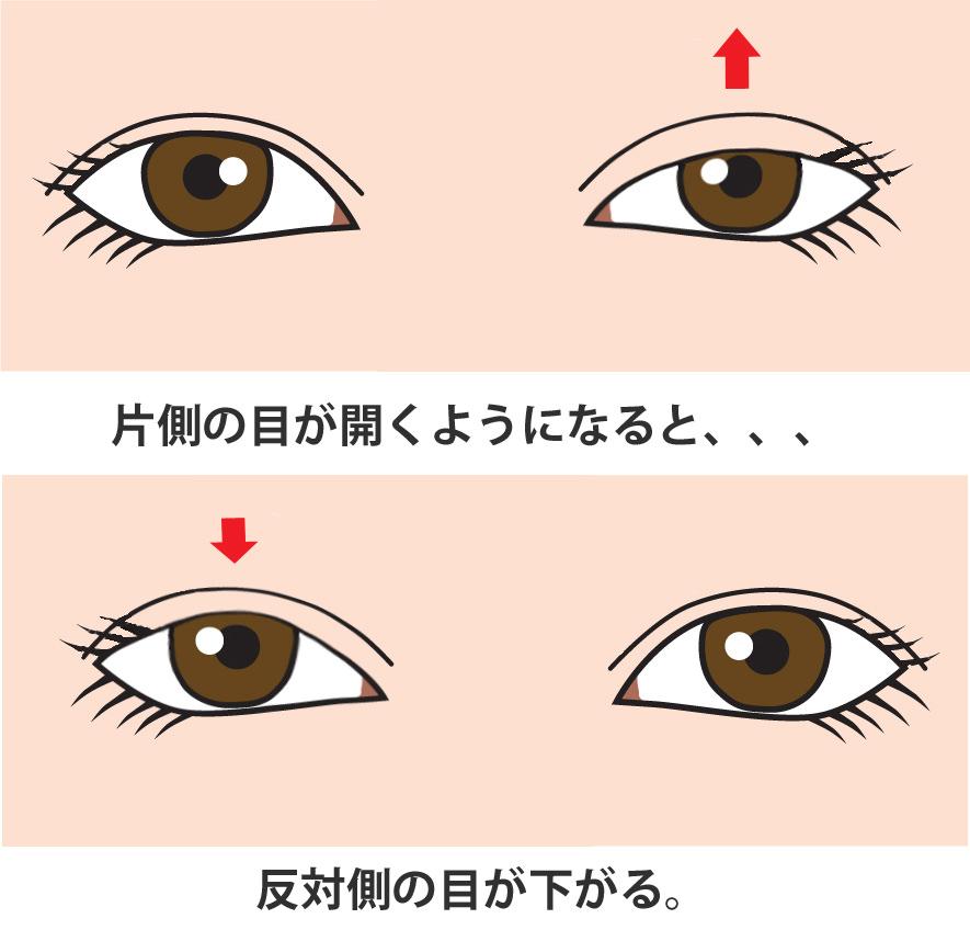 へリングの法則 眼瞼下垂