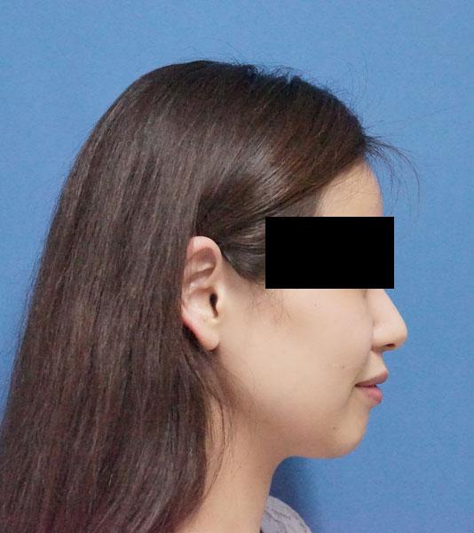 HIFU(ハイフ)全顔 3ヶ月後のBefore写真