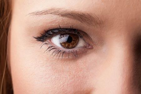目の下脂肪取り+目の下脂肪注入(コンデンス)