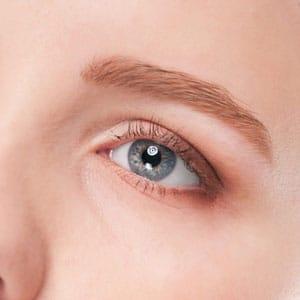 下眼瞼下制(結膜アプローチ+皮膚切除)