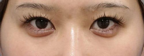 下眼瞼下制(切るタレ目)、他院目尻切開修正 1ヶ月後のBefore写真