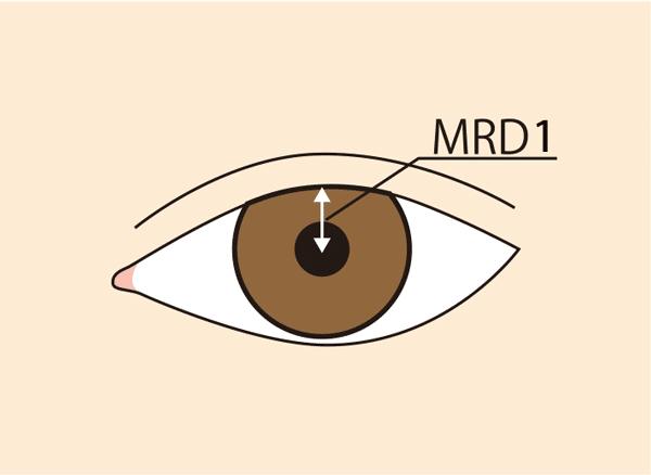 眼瞼下垂基準