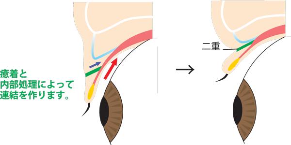 二重全切開断面図 前葉と後葉癒着図