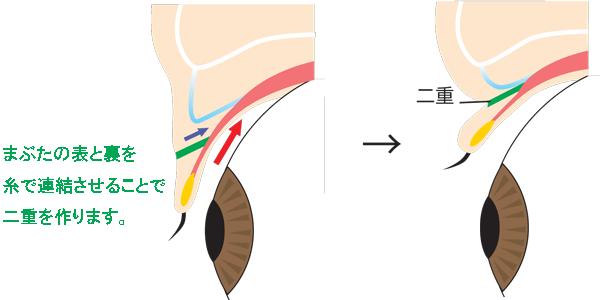二重整形の埋没法と切開法の違い!切開法の手術方法について解説
