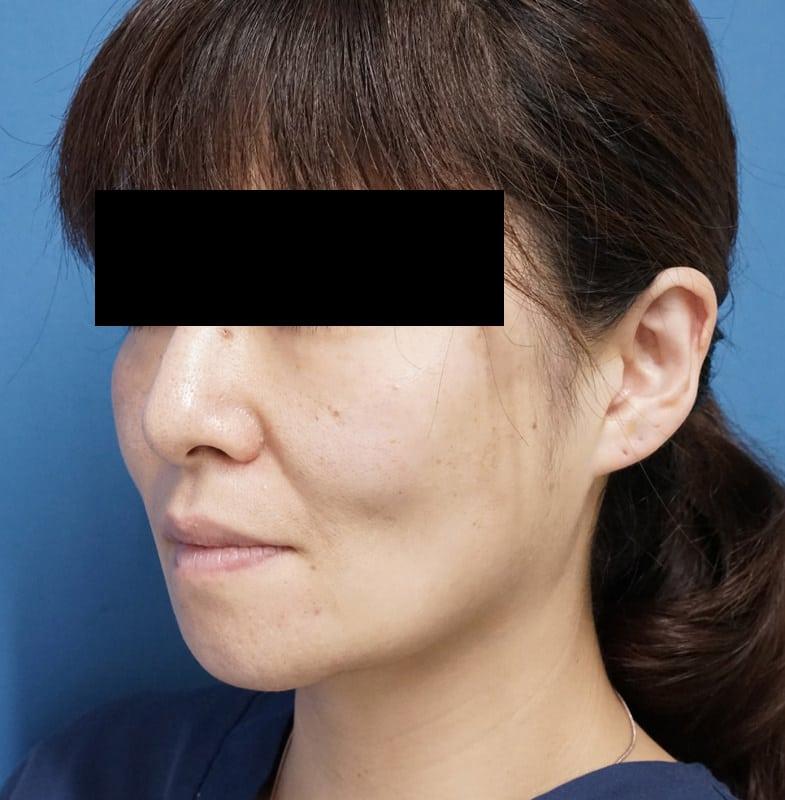 ミントリフトミニ 手術直後のAfterの写真